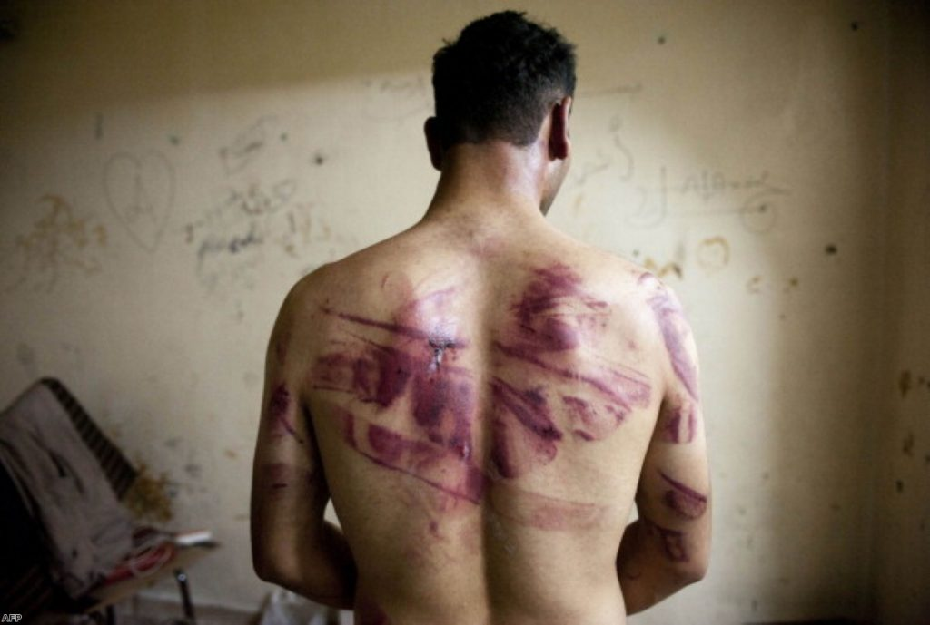 A Syrian man shows marks of torture on his back, after he was released from regime forces