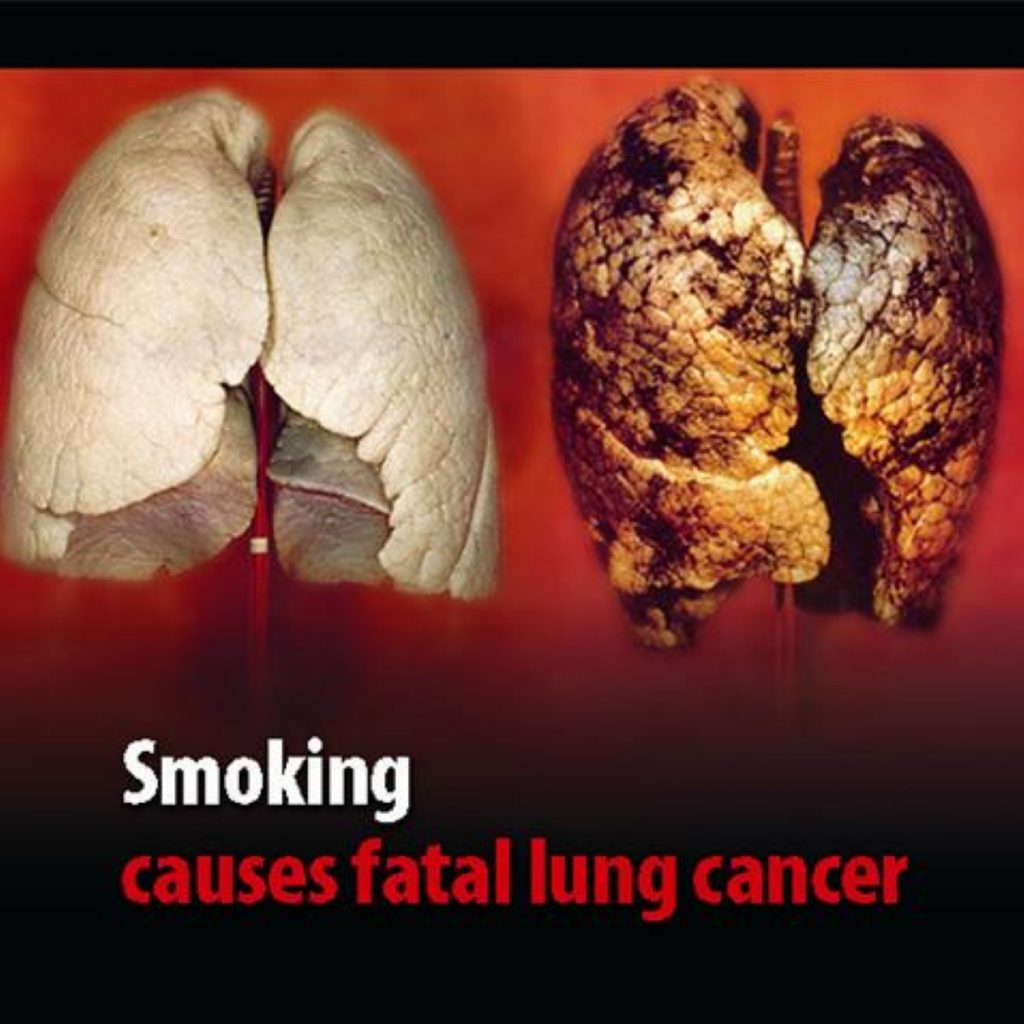 Lung cancer warning among new images